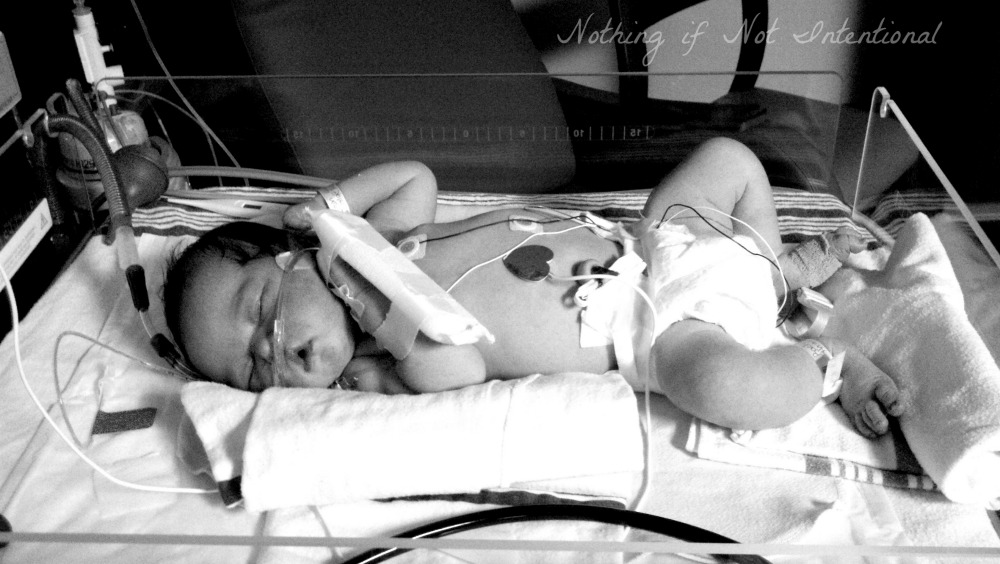 The science of skin-to-skin contact and how it helped our baby in the NICU